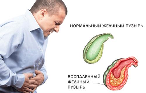 здоровый и воспаленный желчный пузырь