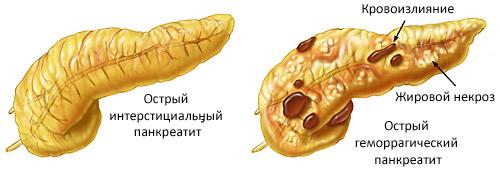 разновидность острого панкреатита