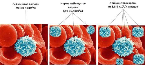 различный уровень лейкоцитов в крови