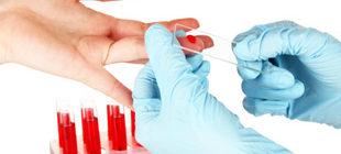 забор крови из пальца для общего анализа