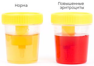 Причины повышения эритроцитов в моче у женщин