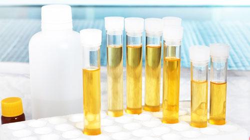лабораторный анализ мочи на белок