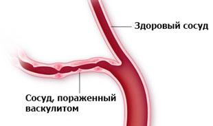 здоровый сосуд и пораженный васкулитом