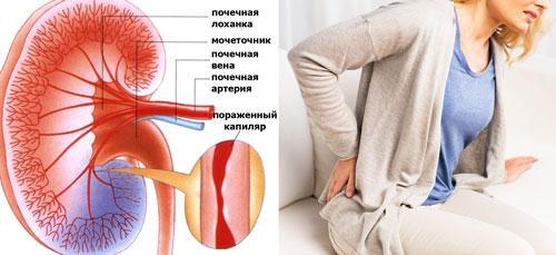 поражение кровеносных сосудов почек и боли