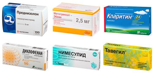 препараты для лечения: Преднизолон, Метотрексат, Кларитин, Диклофенак, Нимесулид, Тавегил