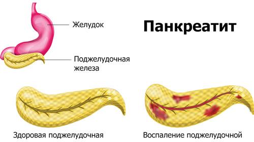 воспаление тканей поджелудочной железы