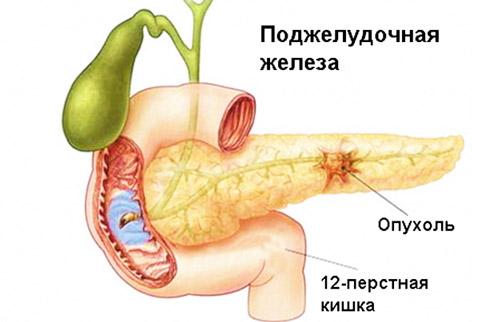 опухоль поджелудочной в результате осложнений при панкреатите