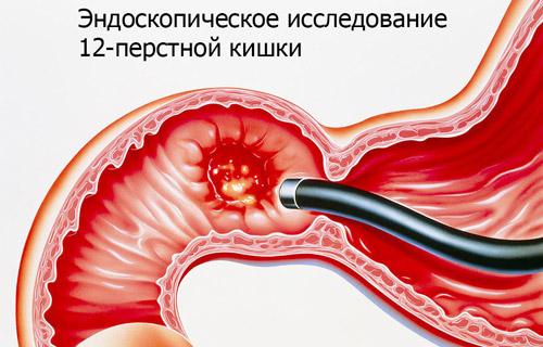 Эндоскопическое исследование пищевода, желудка и 12-перстной кишки