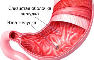 повреждение слизистой желудка и язва