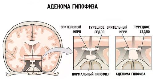 влияние аденомы на зрительный нерв