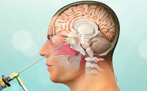 трансназальная операция на аденоме гипофиза