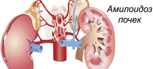 поражение почек амилоидоза