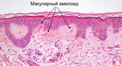 первичный амилоидоз кожи под микроскопом
