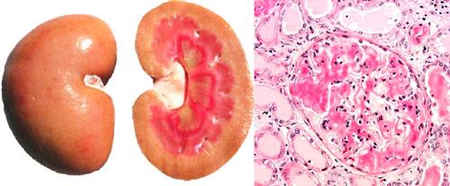 накопление амилоида в почках