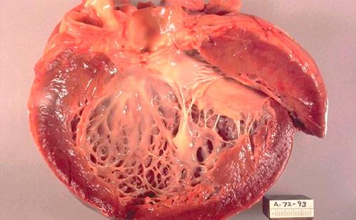 накопление амилоида в сердце