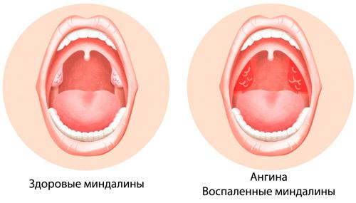 здоровые миндалины и воспаленные при ангине