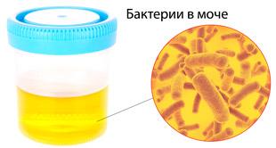 бактерии в анализе мочи