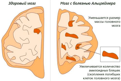 изменения здорового мозга при болезни мозг здорового человека и с болезнью Альцгеймера