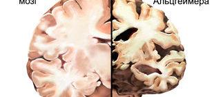 мозг здорового человека и с болезнью Альцгеймера