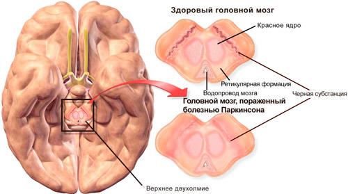 здоровый мозг и пораженный болезнью Паркинсона