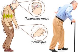 тремор рук один из симптомов болезни Паркинсона
