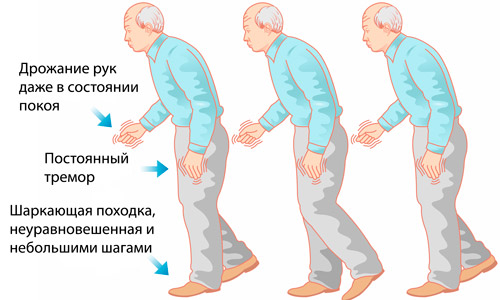 дрожательная форма болезни Паркинсона