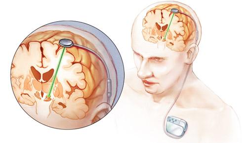 глубокая стимуляция мозга при лечении болезни Паркинсона