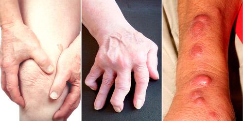 хроническая форма бруцеллеза: артрит суставов и миозиты