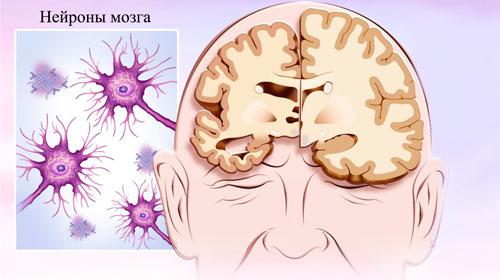нейроны в мозге человека