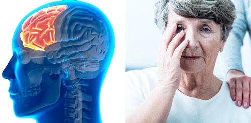 болезнь Пика лобно-височная дегенерация