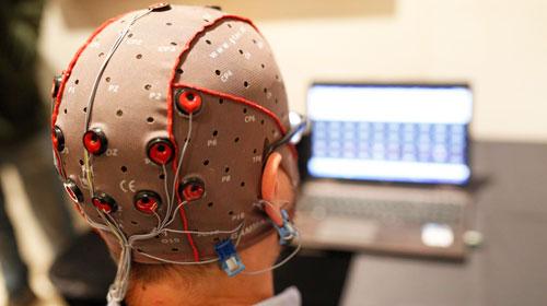 нейростимуляция мозга