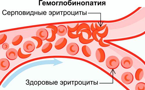 гемоглобинопатия: здоровые и серповидные эритроциты