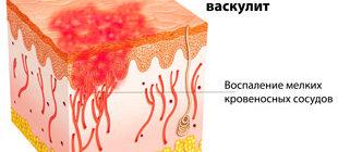 воспаление кровеносных сосудов при геморрагическом васкулите