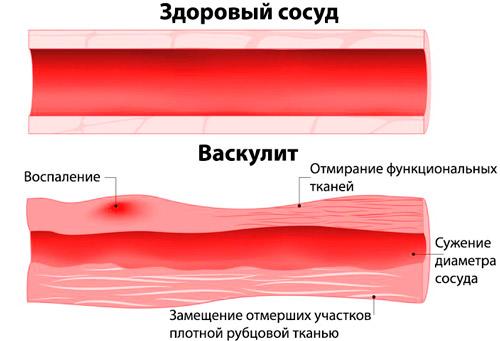 здоровый сосуд и воспаленный при васкулите