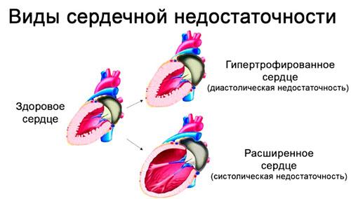 разновидности сердечной недостаточности