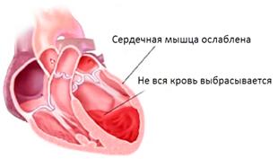 признаки хронической сердечной недостаточности