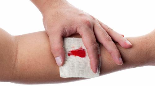 кровь в порезе на руке