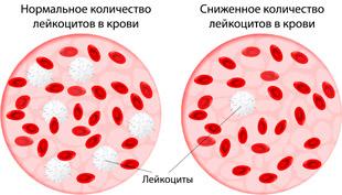 нормальное и пониженое количество лейкоцитов в крови