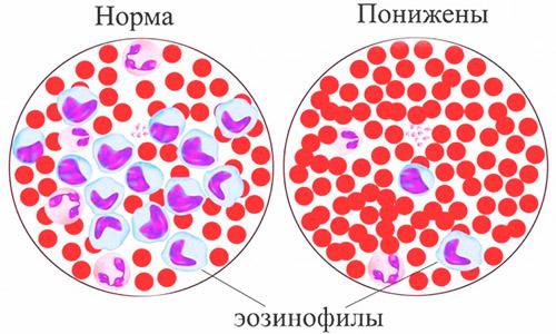 нормальное содержание эозинофилов(лейкоцитов) и лейкопения