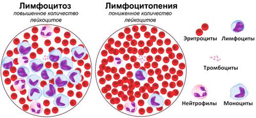 количество лейкоцитов в крови при лимфоцитозе и лимфоцитопении