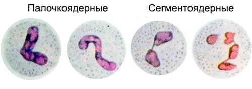 два вида нейтрофилов: палочкоядерные и сегментоядерные