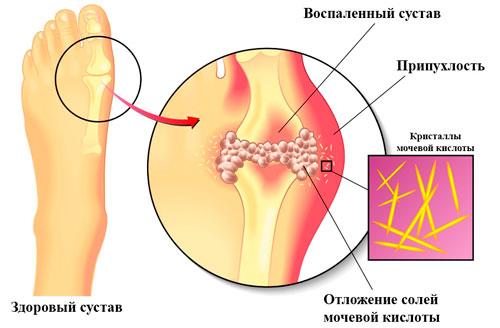 отложения мочевой кислоты в суставах