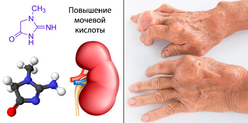 распад пуриновых соединений и образование мочевой кислоты