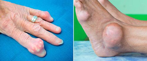 тофусы при подагре на руках и ногах
