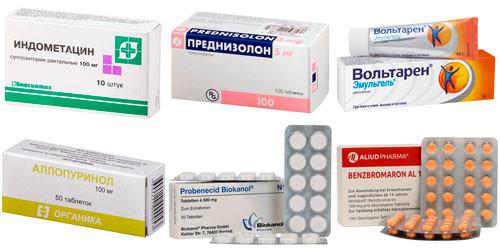препараты от подагры и приступов: Индометацин, Преднизолон, Вольтарен, Аллопуринол, Пробенецид, Бензбромарон