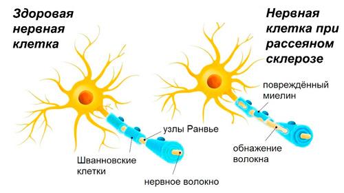 здоровый нерв и нерв при рассеянном склерозе