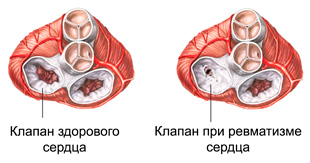 клапан здорового сердца и при ревматизме