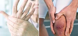 ревматизм суставов рук и ног