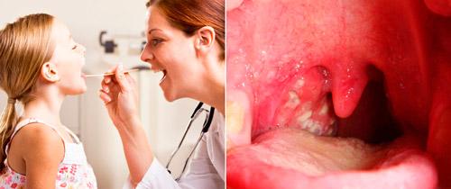 стрептококковая инфекция верхних дыхательных путей