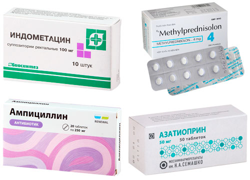 рекомендуемые препараты при ревматизме суставов: Индометацин, Метилпреднизолон, Ампициллин, Азатиоприн